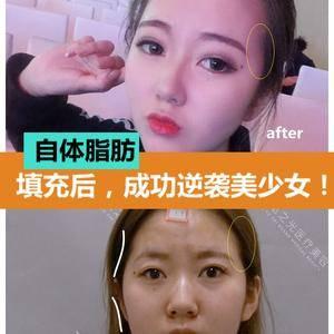 自体脂肪面部填充后,如何改善脸型,逆袭成为美少女?