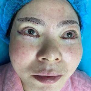 眼袋手术日记