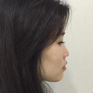 鼻子整形綜合
