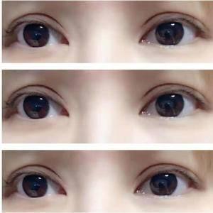 哪些特征表明你的双眼皮手术失败了