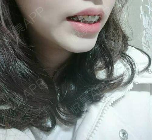 自锁托槽矫正术后610天_牙齿矫正术后610天_牙齿美容术后610天_Azaira__sM0f7分享图片6