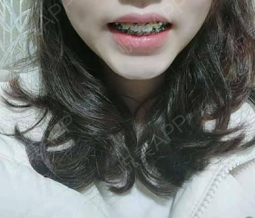 自锁托槽矫正术后610天_牙齿矫正术后610天_牙齿美容术后610天_Azaira__sM0f7分享图片5