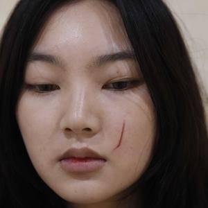 面部凹陷疤痕