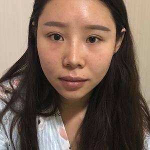 厚唇改薄唇部手术