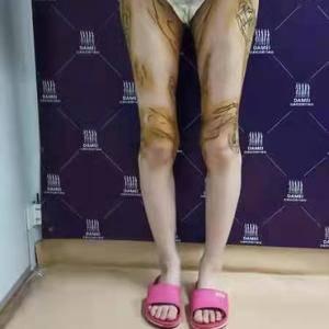 吸脂修复+腿型矫正
