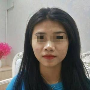 假体隆鼻+耳软骨