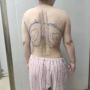 后背吸脂术