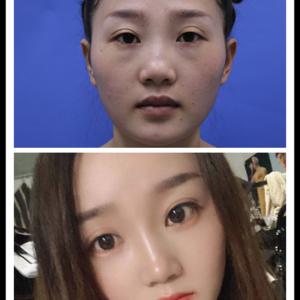面部脂肪填充术