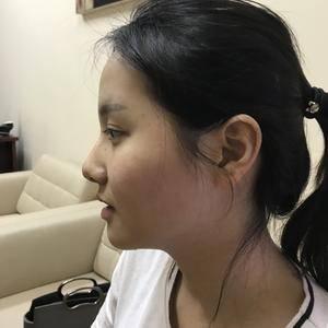 鼻部整形综合