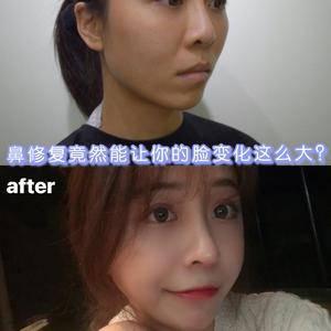 鼻修复竟然能让你的脸变化这么大?