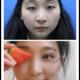 """""""現在是術后的四十天了,雖說術后一個月眼睛的雙眼皮基本就定型了,但是醫生說對于眼睛雙眼皮不滿意的最好是在等兩個月,每個人的..."""