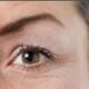 眼皮下垂需要做好这一点,双眼皮才好看!