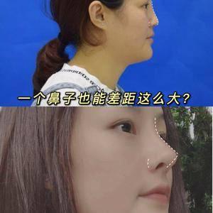 一个鼻子也能差距这么大?
