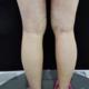 大腿吸脂,术后一个月了,现在每天腿都在消肿,凉了一下围度大腿只有42哦,比之前的围度小了好多,因为我是...