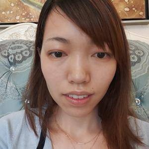 正颌成型术