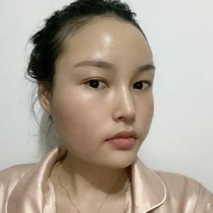 面部輪廓-瘦臉-面部吸脂