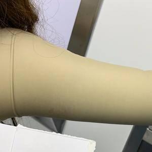 纖細少女臂