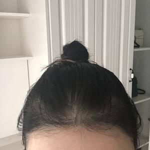 大脑门少女的植发分享