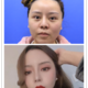 最近早上起的比较的早,就在撸完妆之后来个自拍照,反馈一下术后的情况,我撩开我的头发,从侧面看,面部的...
