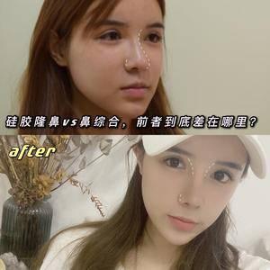 硅胶隆鼻VS鼻综合,前者到底差在哪里?