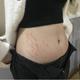 在懷孕6-7個月的時候肚子上面就出現了很多的妊娠紋,黑白相間的非常難看,生我寶寶的我也用了不少的去妊娠...