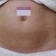 現在已經過了恢復期,腹部緊致了不少。妊娠紋已經明顯的改變了,著效果真的很好,現在滿腦子都是夏天穿美美...