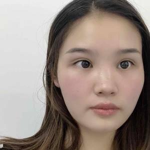 雙眼皮修復日記