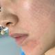 在康華清醫院打的術可唯水光針,做完之后摸著就感覺皮膚嫩了很多(不知道是不是心理作用),三月換季,趕緊...