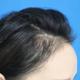 植发4个月了,烦人的脱落期终于结束了,现在有一点点形状出来了,就是前面头发还短,有点飞起。去医院复查...