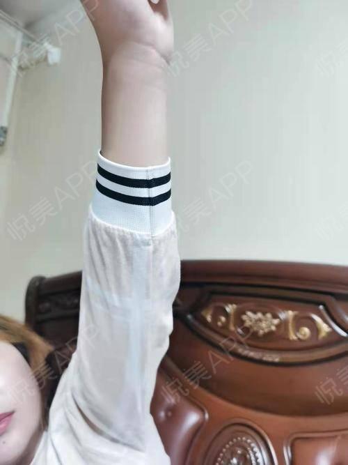 吸脂瘦手臂术后155天_吸脂术后155天_瘦手臂术后155天_美体塑形术后155天_等一个summer 分享图片5
