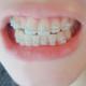 我的矫正日记我是从25岁开始矫正牙齿,陶瓷钢牙也没有之前想的那么丑!刚开始时羡慕有的人,眼睛很好看,鼻...