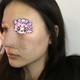 项目:耳软骨复合隆鼻。面诊沟通:面诊的时候医生很细心、我是喜欢哪个网红一点,因为我自身鼻子条件还可以,...