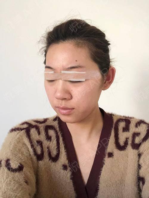韩式双眼皮手术当天_双眼皮手术当天_眼部整形手术当天_小阿婵呀分享图片1