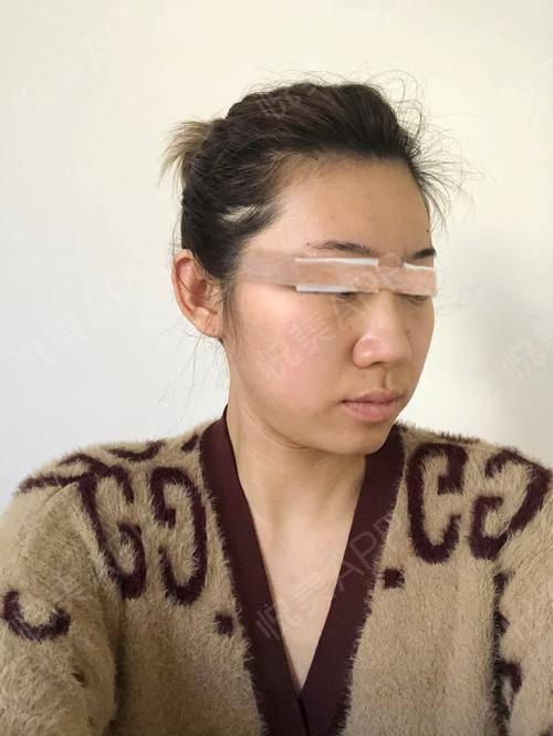 韩式双眼皮手术当天_双眼皮手术当天_眼部整形手术当天_小阿婵呀分享图片2