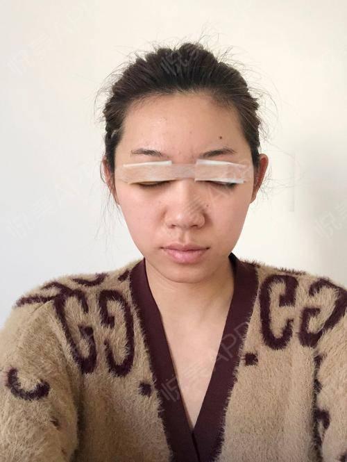 韩式双眼皮手术当天_双眼皮手术当天_眼部整形手术当天_小阿婵呀分享图片3
