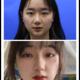 很多姐妹问我到底选择什么样的双眼皮的手术方式比较的好,这个在医生面诊的时候,会根据每个人的不一样的情...