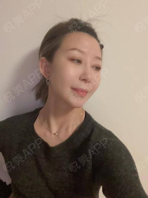 """今天在家导shouji整理相册看到了好几张天冷拍的照片,好像再不发出来就该""""过期""""了照片有点糊,但是法令纹真的浅了好多,..."""