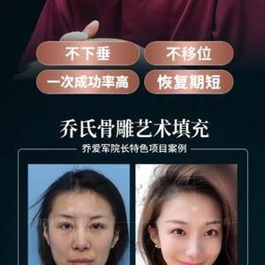 北京脂肪专科面部脂肪填充最好案例