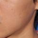 做完之后发红的痘痘会瘪下去,然后毛孔会变小。按照疗程做痘痘可以消好多。操作过程中虽然有敷麻药,但是还...