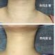 热玛吉我做了脸部和颈部,改善效果是即刻就能见到的。不愧是网红项目!就是做的时候有点疼,可能我是真的不...