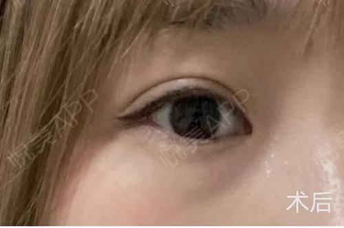 做完双眼皮也4个多月啦~原来的我的眼睛也是有个小双眼皮的,就是太不明显了,想要好看就得贴双眼皮贴,这贴的时间长了,就觉...