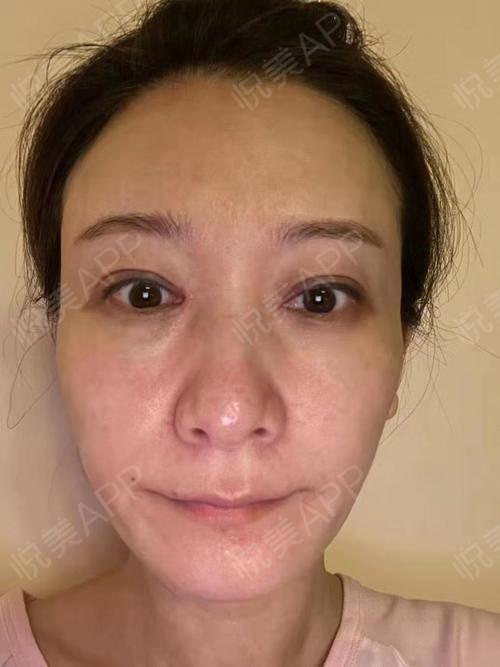 做完修复已经三个多月快四个月了,双眼皮修复给大家强烈推荐季滢医生!!术后特别赞!原来做的双眼皮疤痕有点严重,内眼角感觉也...