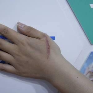 手背划伤增生疤痕治疗