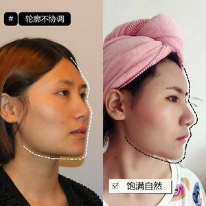 面部凹陷填充自体脂肪效果怎么样?