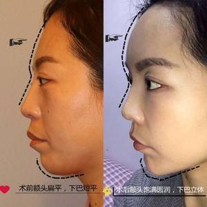 面部凹陷填充之后可以有多显年轻?