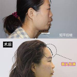填充面部凹陷对抵抗衰老有多大的改变