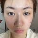 本人98年泪沟位置的凹陷非常严重 明显感觉面部是有点松弛的大小脸也很明显  嘴唇没有形还有就是我的皮肤状...
