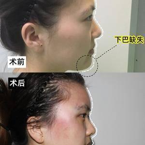 面部凹陷-你能忍受自己面部凹陷像老了十岁吗?
