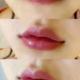 乔雅登玻尿酸丰唇自然款微笑唇老早就想做玻尿酸丰唇,今天操作啦!!我比较喜欢自然的,最好没什么注射痕迹的款...