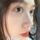 好多姐妹做完鼻综合后悔,一直在修复过程中我就是怕做毁,做的玻尿酸填充鼻子。填的是乔雅登,维持一年多我也...